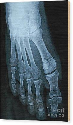 X-ray Image Of Mature Man's Feet Wood Print by Sami Sarkis