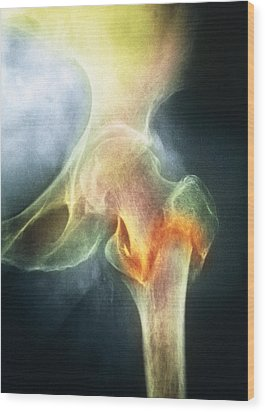 Coloured X-ray Of Femur Fracture In Osteoporosis Wood Print by Medical Photo Nhs Lothian