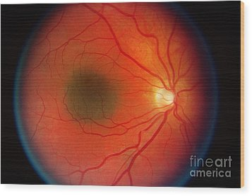 Nevus In The Retina Wood Print by Science Source