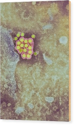 Yellow Fever Virus Particles, Tem Wood Print by London School Of Hygiene & Tropical Medicine