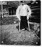 Child Labor, Frank P., Legs Were Cut Acrylic Print by Everett