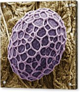 Freshwater Alga, Sem Acrylic Print by Steve Gschmeissner
