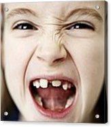 Loss Of Milk Teeth Acrylic Print by Ian Boddy