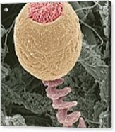Vorticella Protozoan, Sem Acrylic Print by Steve Gschmeissner