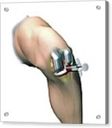 Woundcare Gel Therapy, Artwork Acrylic Print by D & L Graphics