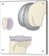 Knee Replacement, Artwork Acrylic Print by Peter Gardiner