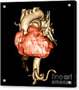 3d Cta Of Heart Acrylic Print by Medical Body Scans