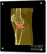 Knee Showing Osteoporosis Acrylic Print by Medical Body Scans