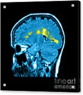 Mri Of Multiple Sclerosis Acrylic Print by Medical Body Scans