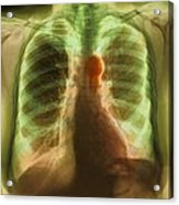 Aortic Aneurysm, X-ray Acrylic Print by