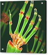 Arthritic Hand, X-ray Artwork Acrylic Print by David Mack
