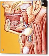 Artwork Of Mouth/neck: Tumour, Cyst, Duct Calculus Acrylic Print by John Bavosi