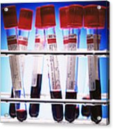 Blood Samples Acrylic Print by Kevin Curtis