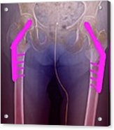 Fixed Double Hip Fracture (image 2 Of 2) Acrylic Print by Du Cane Medical Imaging Ltd