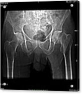 Hip Fracture, Digital X-ray Acrylic Print by Du Cane Medical Imaging Ltd