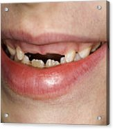 Loss Of Milk Teeth Acrylic Print by Lawrence Lawry