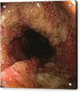 Ulcerative Colitis In The Sigmoid Colon Acrylic Print by Gastrolab
