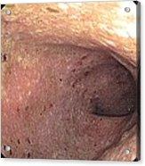 Ulcerative Colitis Of The Sigmoid Colon Acrylic Print by Gastrolab