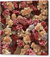 Cells From A Urine Infection, Sem Acrylic Print by Steve Gschmeissner