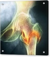 Coloured X-ray Of Femur Fracture In Osteoporosis Acrylic Print by Medical Photo Nhs Lothian