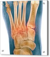 Crushed Broken Foot, X-ray Acrylic Print by