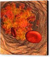 Blood Clot Canvas Print by Roger Harris