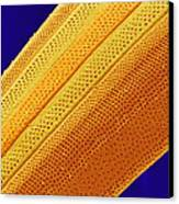 Marine Diatom Alga, Sem Canvas Print by Susumu Nishinaga