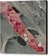 Ruptured Venule, Sem Canvas Print by Steve Gschmeissner