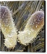 Chilodonella Ciliate Protozoan, Sem Canvas Print by Power And Syred