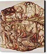 Encircling Gunshot-wound In Brain, 1898 Canvas Print by Science Source