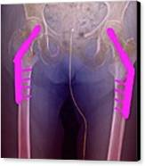 Fixed Double Hip Fracture (image 2 Of 2) Canvas Print by Du Cane Medical Imaging Ltd