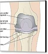 Knee After Knee Replacement, Artwork Canvas Print by Peter Gardiner