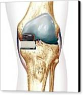 Partial Knee Replacement, Artwork Canvas Print by D & L Graphics