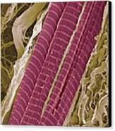 Primate Finger Muscle, Sem Canvas Print by Steve Gschmeissner