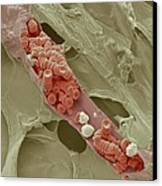 Ruptured Venule, Sem Canvas Print by Steve Gschmeissner