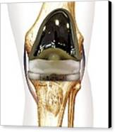 Total Knee Replacement, Artwork Canvas Print by D & L Graphics