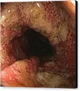 Ulcerative Colitis In The Sigmoid Colon Canvas Print by Gastrolab