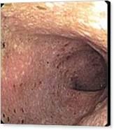 Ulcerative Colitis Of The Sigmoid Colon Canvas Print by Gastrolab