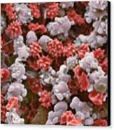 Cells From A Urine Infection, Sem Canvas Print by Steve Gschmeissner