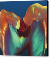 Polarised Lm Of A Molar Tooth Showing Decay Canvas Print by Volker Steger