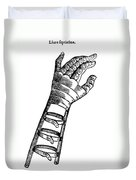 Artificial Hand Designed By Ambroise Duvet Cover by Science Source