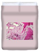 Ewing Sarcoma Duvet Cover by Science Source