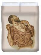 Suicide Through Stabbing 1898 Duvet Cover by Science Source