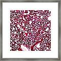 Lung Tissue, Light Micrograph Framed Print by Dr Keith Wheeler