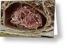 Blood clot Greeting Card by Science Photo Library