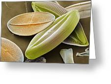Diatoms, Sem Greeting Card by Power And Syred