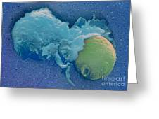 Macrophage Englufing Yeast Cell Greeting Card by Biology Pics
