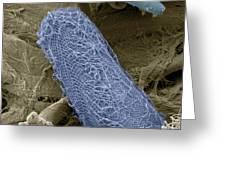 Ciliate Protozoan, Sem Greeting Card by Steve Gschmeissner