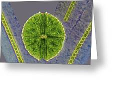 Desmids, Light Micrograph Greeting Card by Science Photo Library