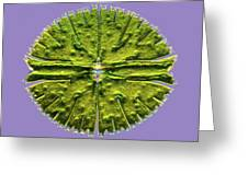 Micrasterias Desmid, Light Micrograph Greeting Card by Science Photo Library